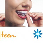 Invisalign Teen: Straight Talk on Straight Teeth